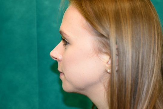 Enhance your appearance by undergoing a Rhinoplasty surgery